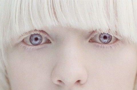 albina-eyes